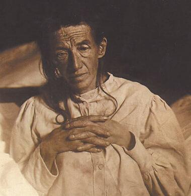 Auguste Deter, první pacientka u které byla popsána Alzheimerova nemoc. Zroj: Wikipedia